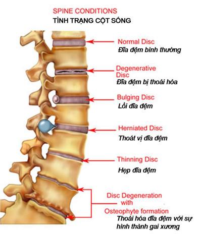 Thoái hóa cột sống thắt lưng, thoát vị đĩa đệm L3/4, L4/5 - Điều trị 20 ngày thuốc hết đau.