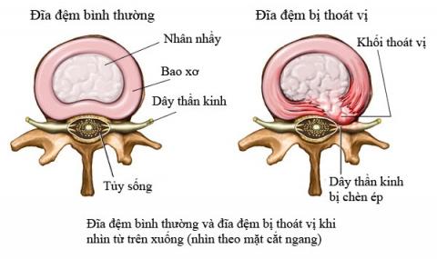 Điều trị thoát vị đĩa đệm cột sống thắt lưng; dùng cách nào an toàn mà hiệu quả nhất.
